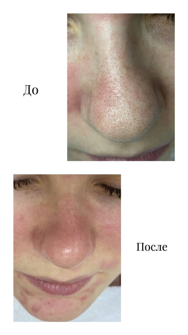 чистка лица результат До - После